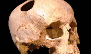 A trepannated skull from Neolithic period