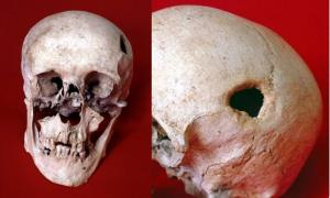 The trepanning of the man's skull, the edges of which had healed, may have been to relieve pain from the deformity of his jaw.