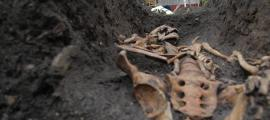 Skeletal Trauma Reveals Class Inequality in Medieval Cambridge