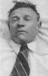 Unknown dead man found on Somerton Beach, Adelaide