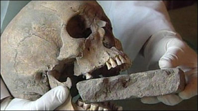 Vampire burial discovered in the island of Lazaretto Nuovo, Italy.