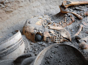 Remains of a woman found in the Burnt City with artificial eye