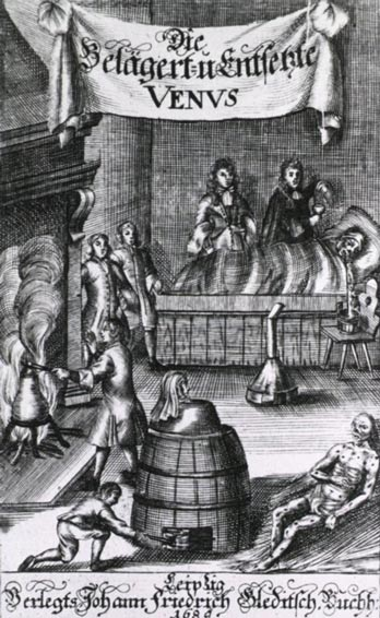 A woodcut from 1689 showing various methods of syphilis treatment including mercury fumigation.