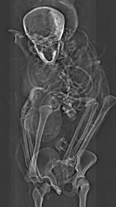 X ray of pharaoh Seqenenre's torso. (Sahar Saleem / Egyptian Ministry of Tourism and Antiquities)